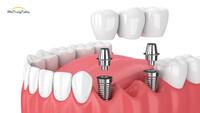 TOP 4+ Địa Chỉ Trồng Răng Implant Uy Tín Nha Trang