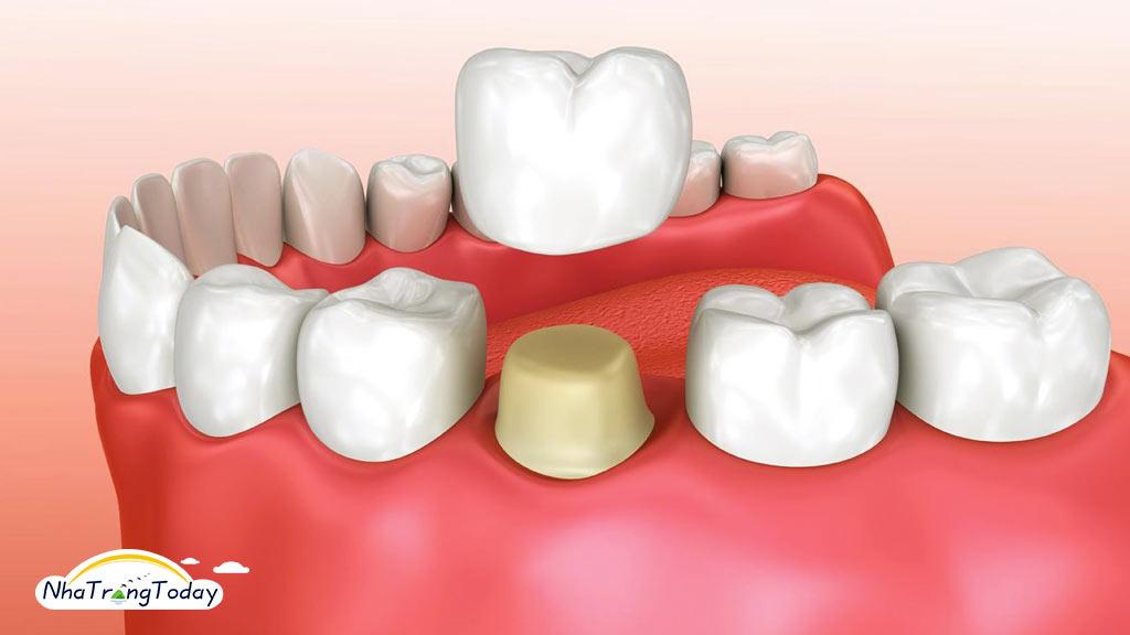 bọc răng sứ nha trang