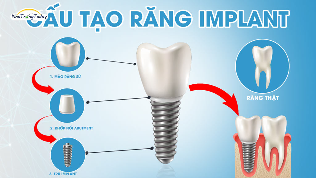 địa chỉ trồng răng Implant nha trang